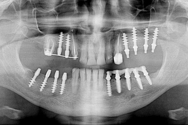 Servicio técnico de equipos dentales para clínicas de Ferrol, Santiago y Coruña